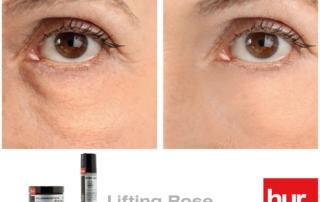 Trattamento Lifting Rose, l'ultima novità di LABORATORIHUR per una pelle sempre giovane