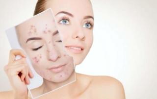 Da Synergy Derm il sistema completo 24 ore contro brufoli e acne